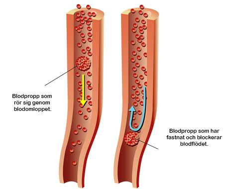 Trombos i benet