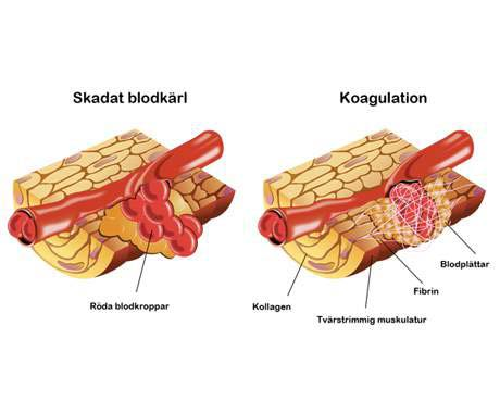 koagulation blodkärl