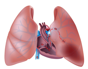 blodpropp i lungan symtom