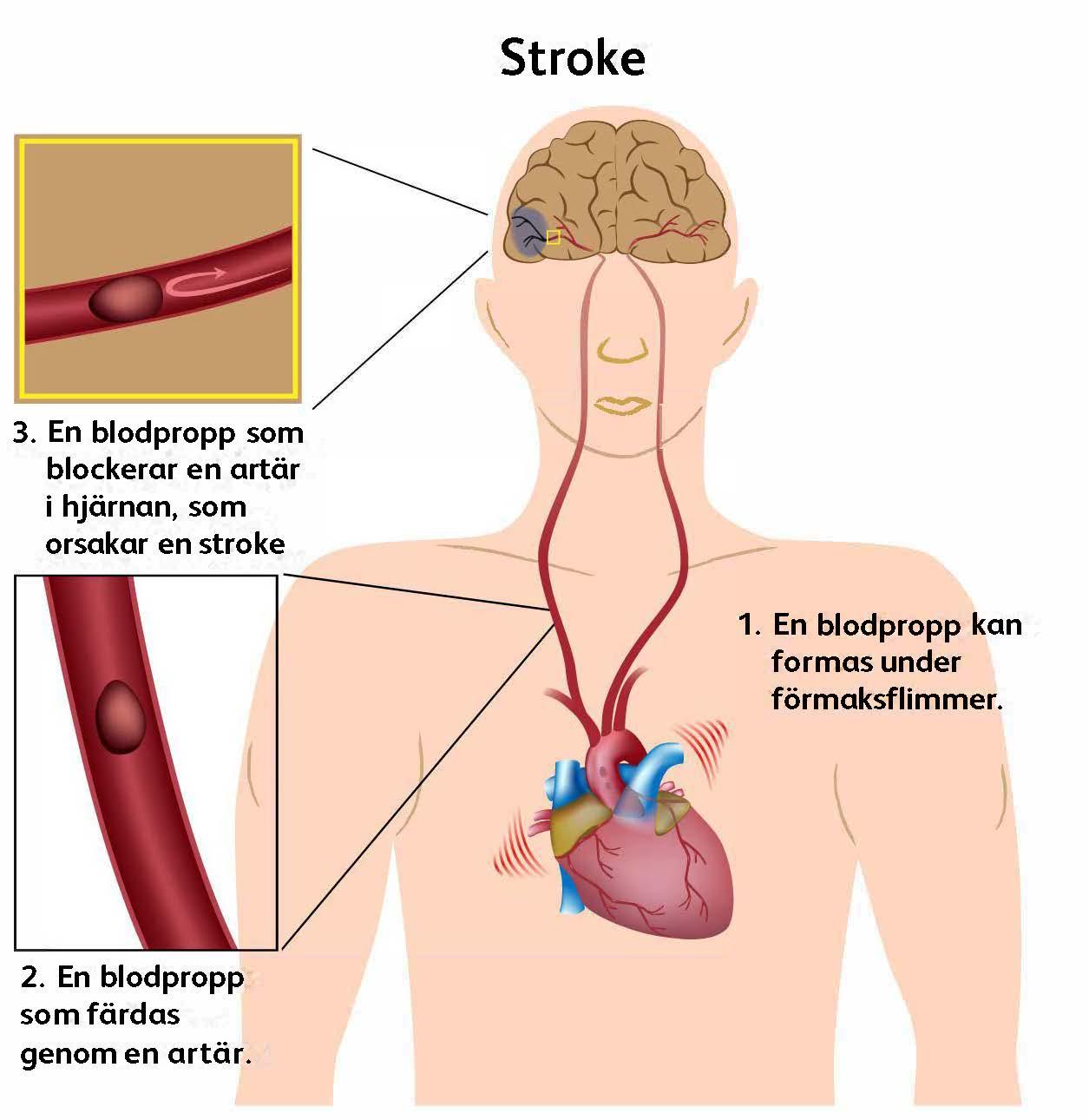 blodproppar i hjärnan